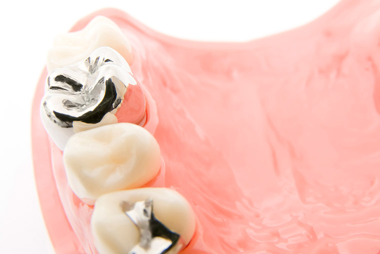 審美歯科(詰め物・被せ物)